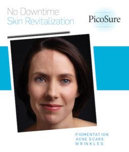 PicoSure-SkinRevitalization