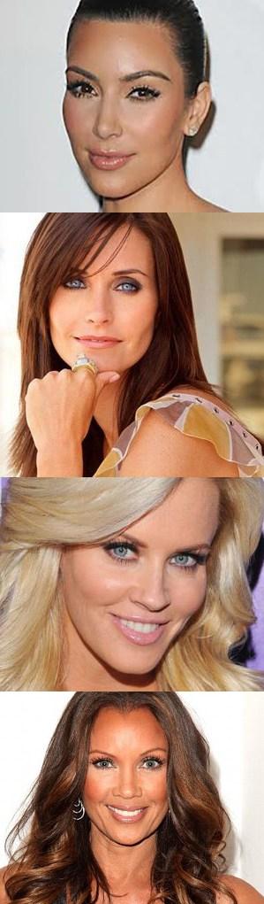botox on celebrities