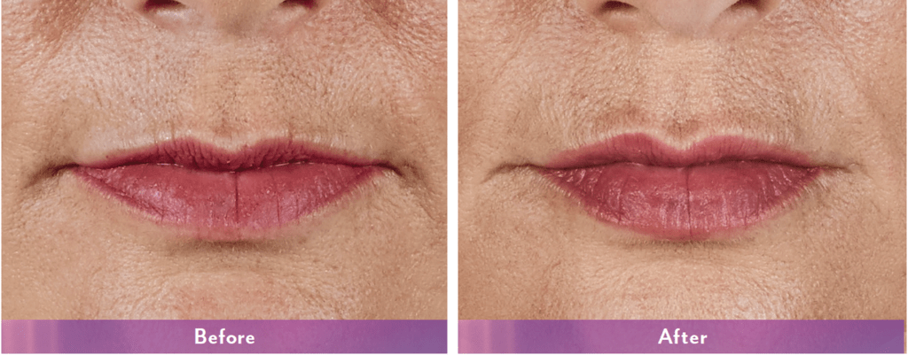 Dermal Fillers | Juvederm, Voluma, Belotero | Newport Med Center