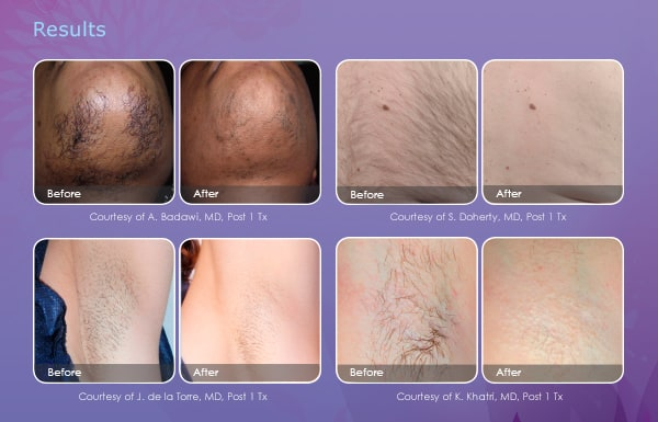Permanent Laser Hair Removal Newport Medical And Wellness Center