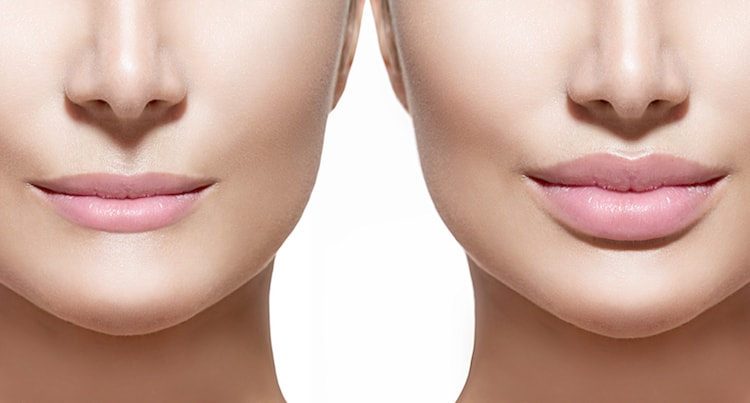 Dermal Fillers at Newport Medical and Wellness | Juvederm, Voluma, Vobella