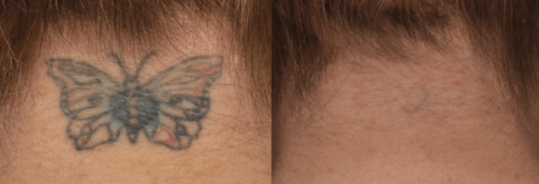 Tattoo Removal at Newport Medical and Wellness
