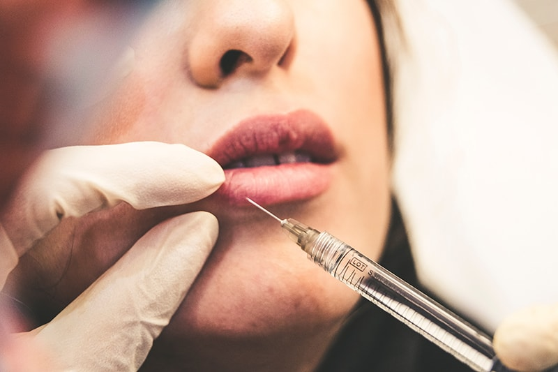When to Start Integrating Botox Into Your Skin-Care Routine | Newport Medical and Wellness